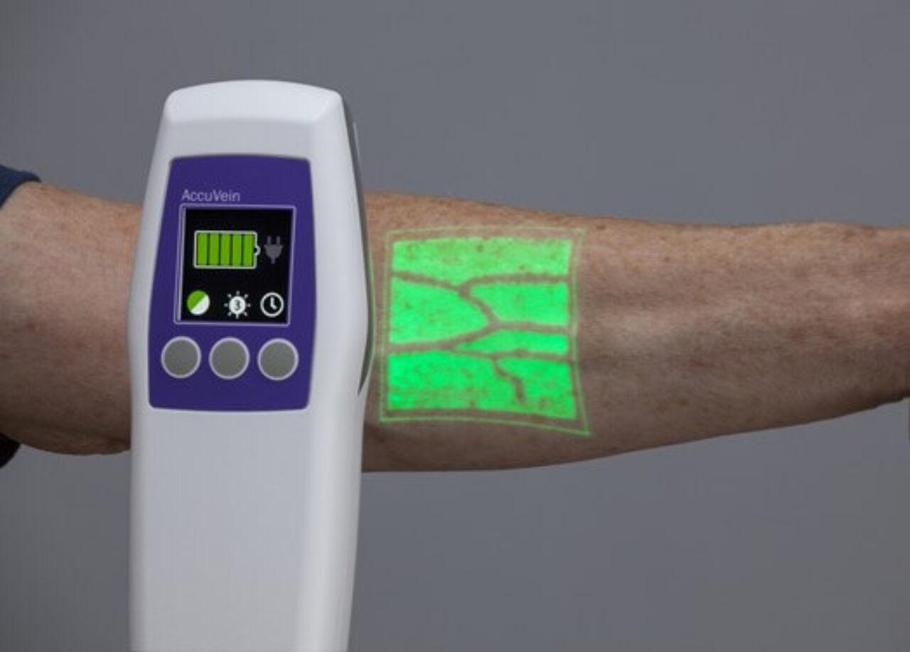 AR handy ultrasound scanner